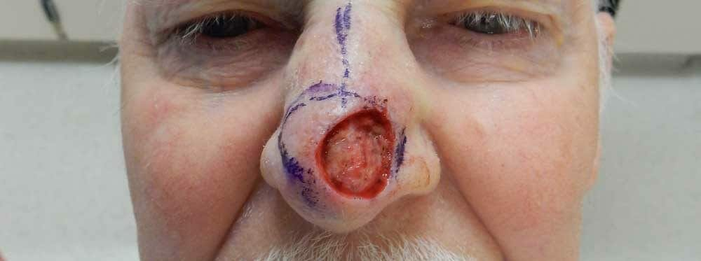 Mohs Reconstruction Gallery - Patient 47149800 - Image 2