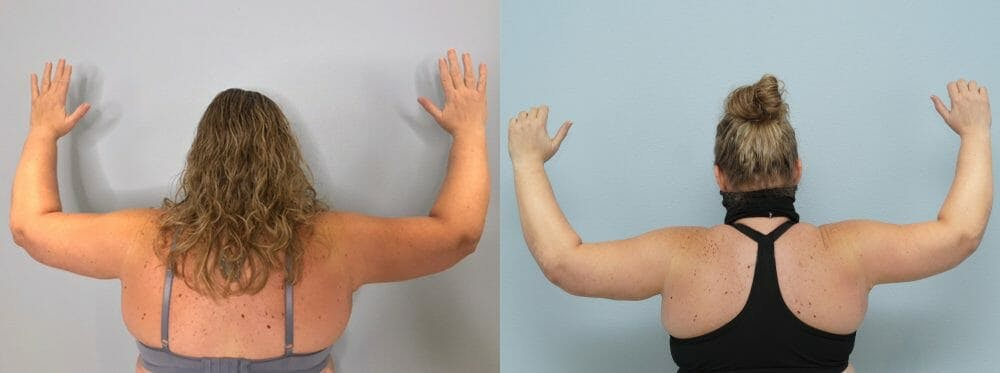 Arm Lift Gallery - Patient 47178647 - Image 1