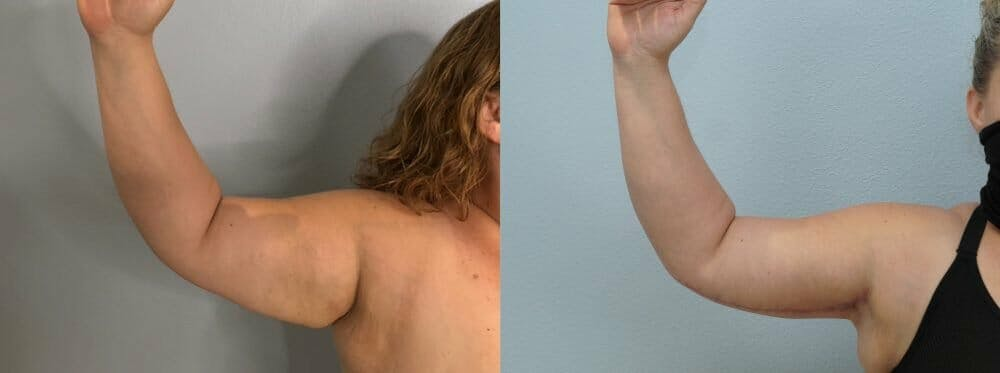 Arm Lift Gallery - Patient 47178647 - Image 2