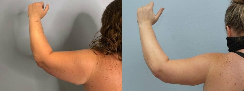 Arm Lift Gallery - Patient 47178647 - Image 3