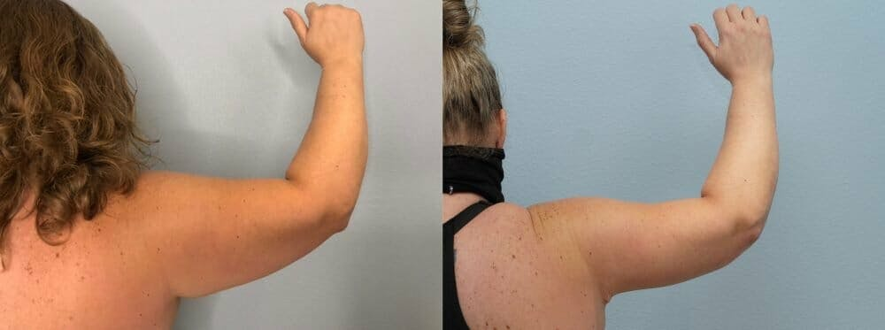 Arm Lift Gallery - Patient 47178647 - Image 4