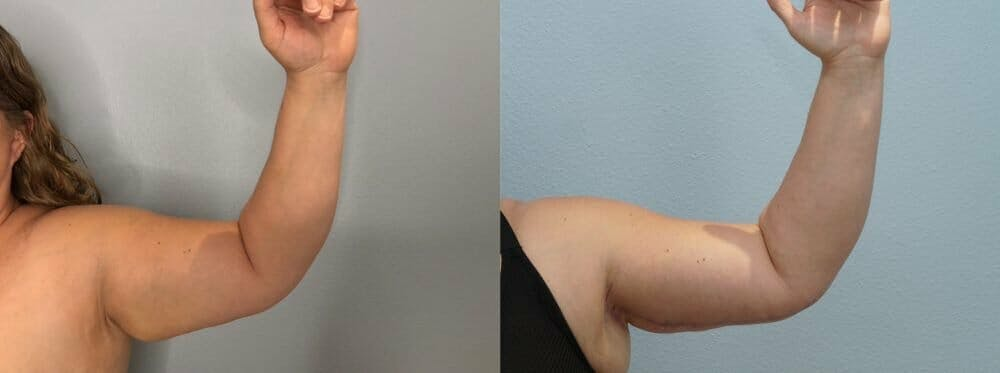 Arm Lift Gallery - Patient 47178647 - Image 5