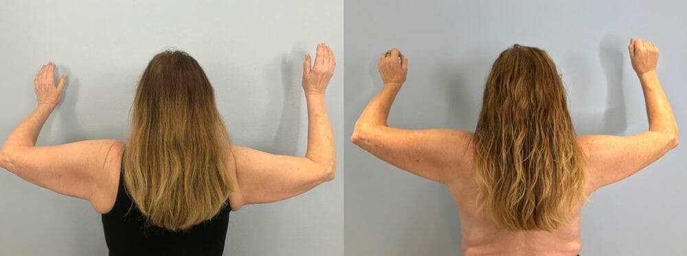Arm Lift Gallery - Patient 47252956 - Image 1