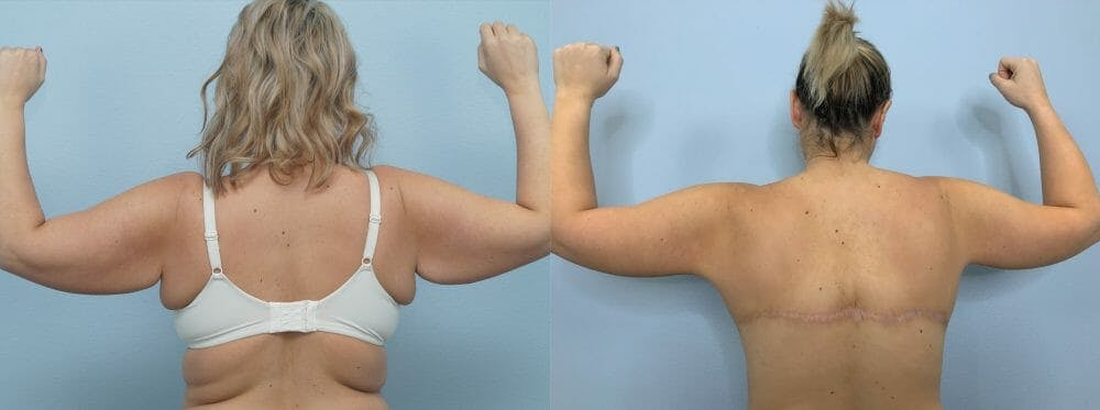 Arm Lift Gallery - Patient 47252957 - Image 1