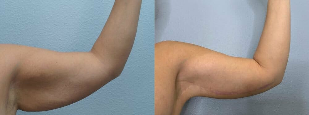 Arm Lift Gallery - Patient 47252957 - Image 3