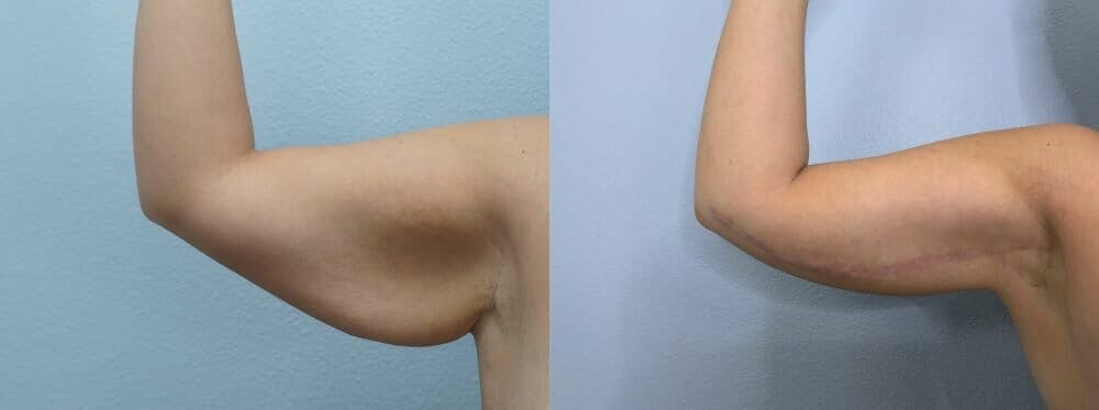 Arm Lift Gallery - Patient 47252957 - Image 5