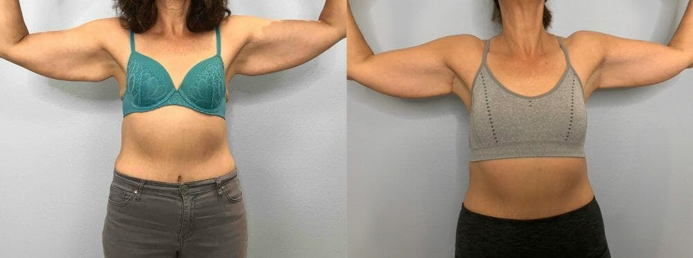 Arm Lift Gallery - Patient 47252958 - Image 2