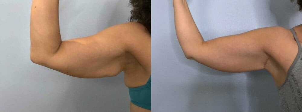 Arm Lift Gallery - Patient 47252958 - Image 6