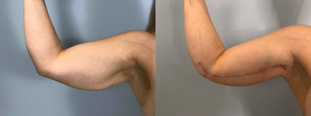 Arm Lift Gallery - Patient 47252960 - Image 2