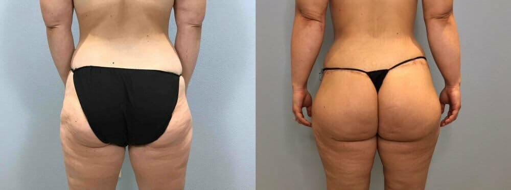 Body Lift Gallery - Patient 47252985 - Image 2