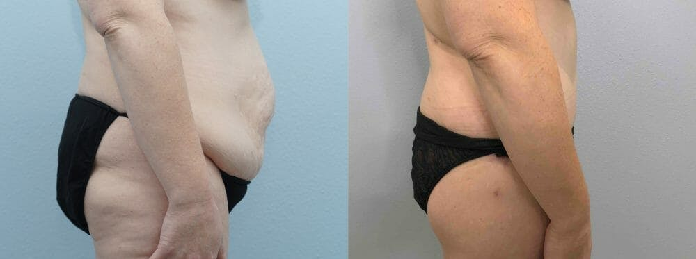 Body Lift Gallery - Patient 47253017 - Image 6