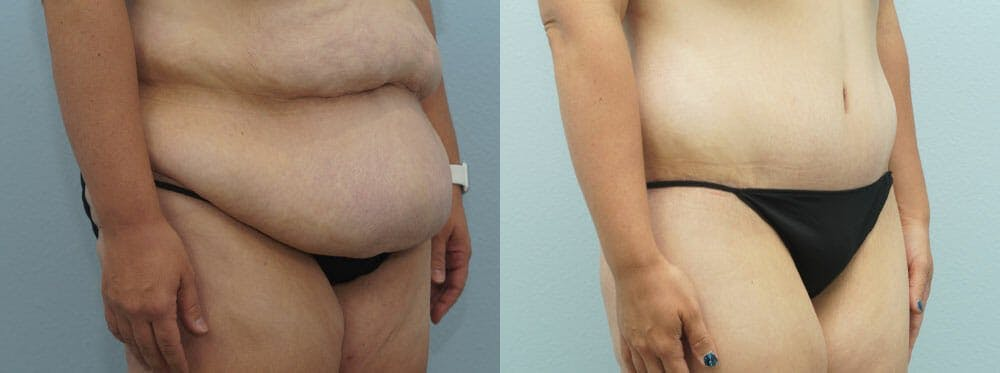 Body Lift Gallery - Patient 47253105 - Image 3