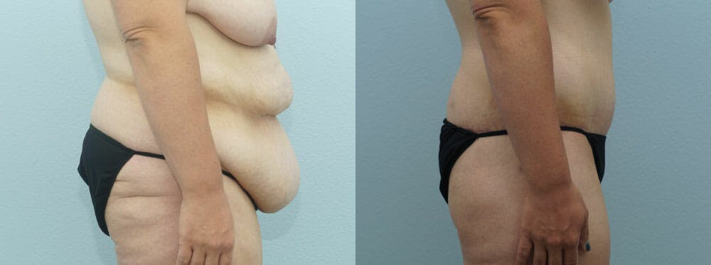 Body Lift Gallery - Patient 47253105 - Image 4