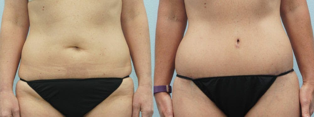 Body Lift Gallery - Patient 47253108 - Image 1