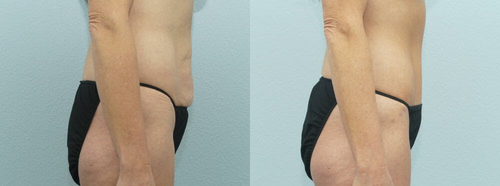 Body Lift Gallery - Patient 47253109 - Image 2
