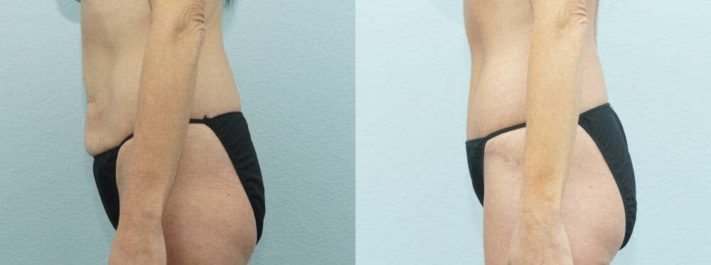 Body Lift Gallery - Patient 47253109 - Image 3