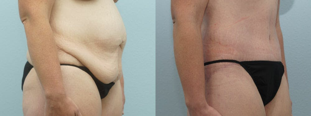 Body Lift Gallery - Patient 47253114 - Image 2