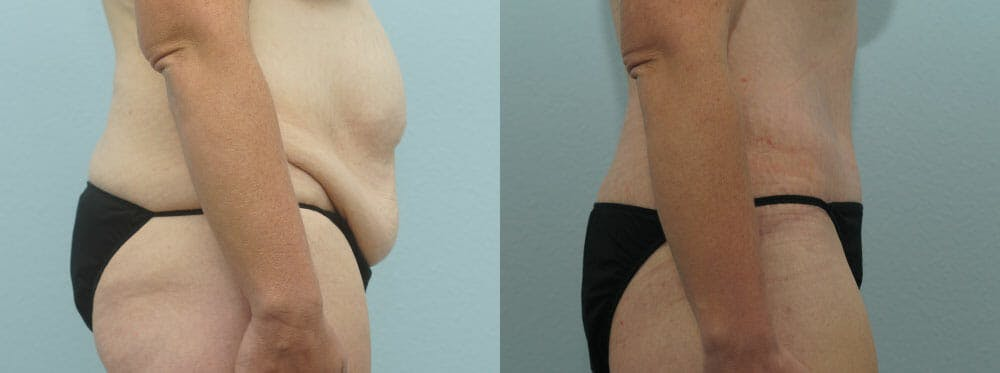 Body Lift Gallery - Patient 47253114 - Image 3