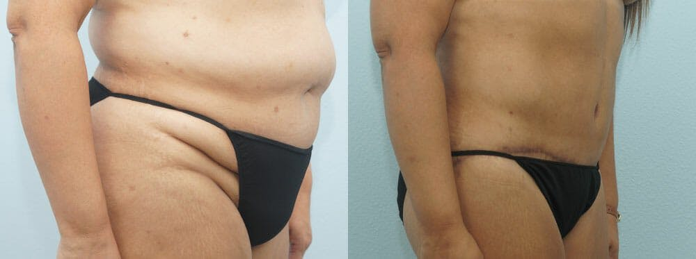 Body Lift Gallery - Patient 47253122 - Image 2