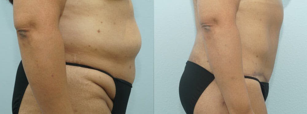 Body Lift Gallery - Patient 47253122 - Image 3