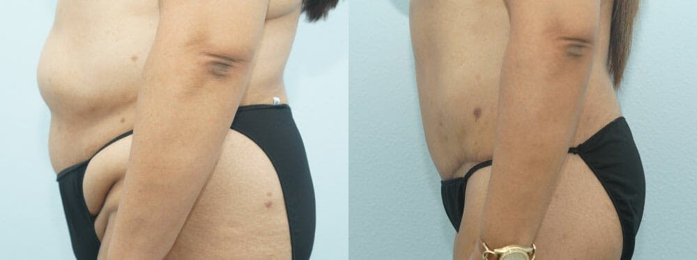 Body Lift Gallery - Patient 47253122 - Image 4
