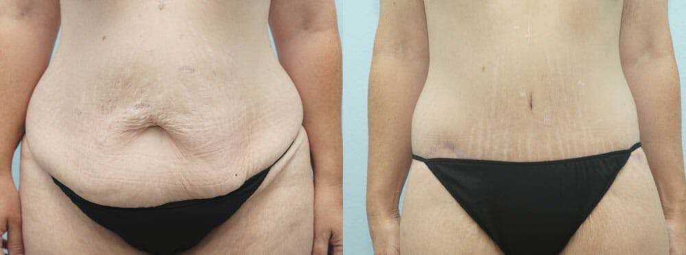 Body Lift Gallery - Patient 47253401 - Image 1