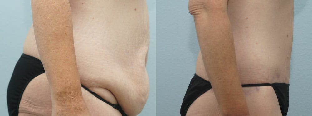 Body Lift Gallery - Patient 47253401 - Image 2