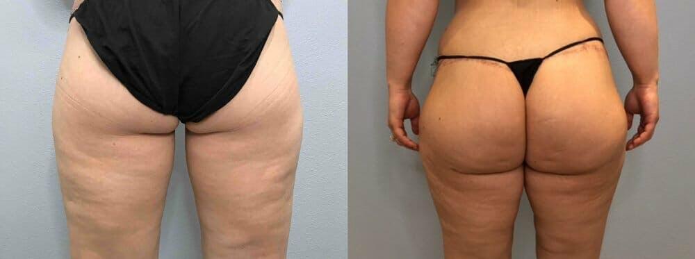 Brazilian Butt Lift Gallery - Patient 47253661 - Image 1