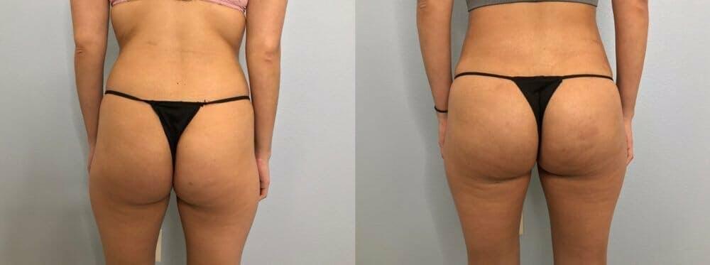 Brazilian Butt Lift Gallery - Patient 47253663 - Image 1