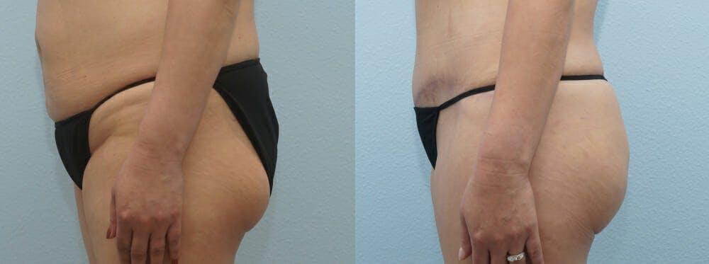 Brazilian Butt Lift Gallery - Patient 47253666 - Image 2