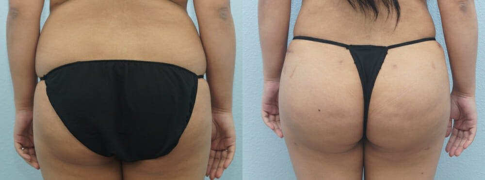 Brazilian Butt Lift Gallery - Patient 47253674 - Image 1