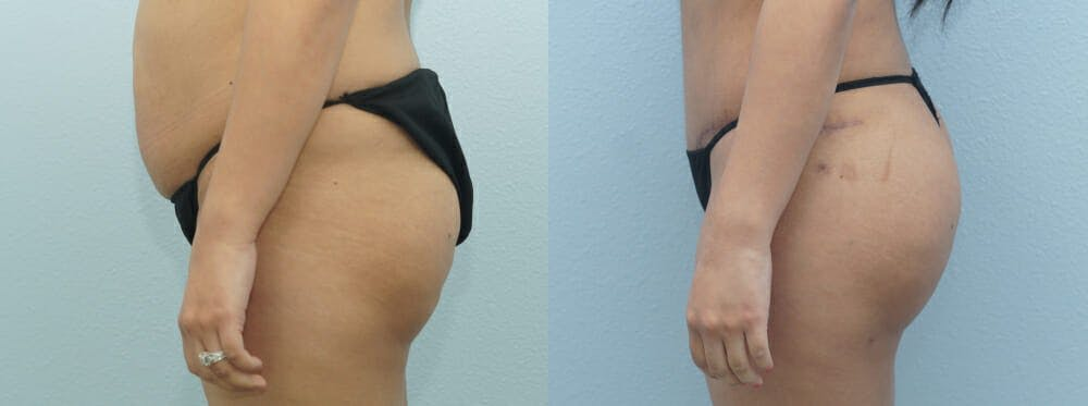 Brazilian Butt Lift Gallery - Patient 47253674 - Image 2