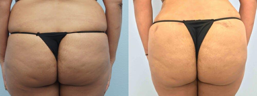 Brazilian Butt Lift Gallery - Patient 47253680 - Image 1
