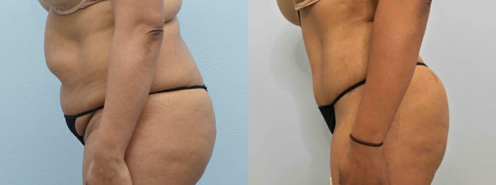 Brazilian Butt Lift Gallery - Patient 47253680 - Image 2