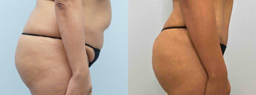 Brazilian Butt Lift Gallery - Patient 47253680 - Image 3