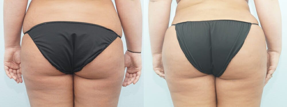 Brazilian Butt Lift Gallery - Patient 47253683 - Image 1