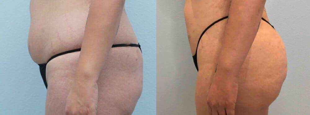 Brazilian Butt Lift Gallery - Patient 47253703 - Image 2