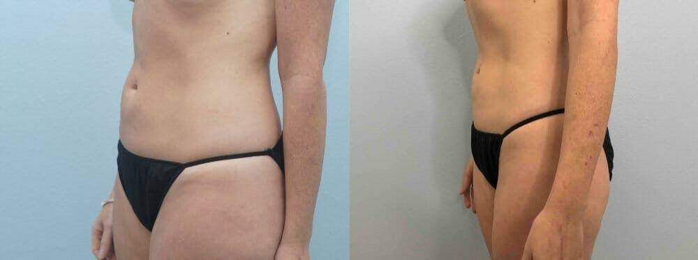 Liposuction Gallery - Patient 47253740 - Image 4