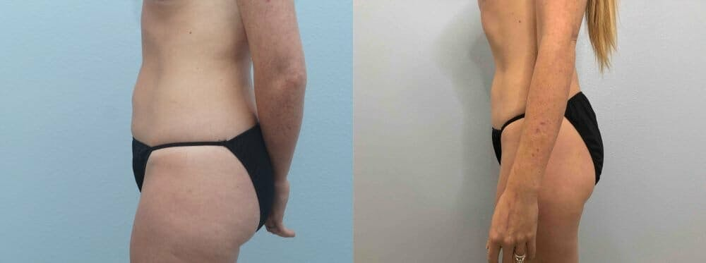 Liposuction Gallery - Patient 47253740 - Image 5