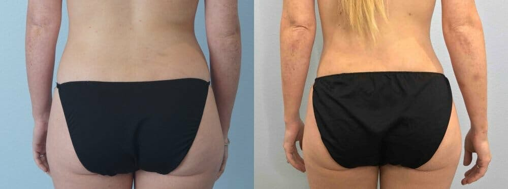 Liposuction Gallery - Patient 47253740 - Image 6