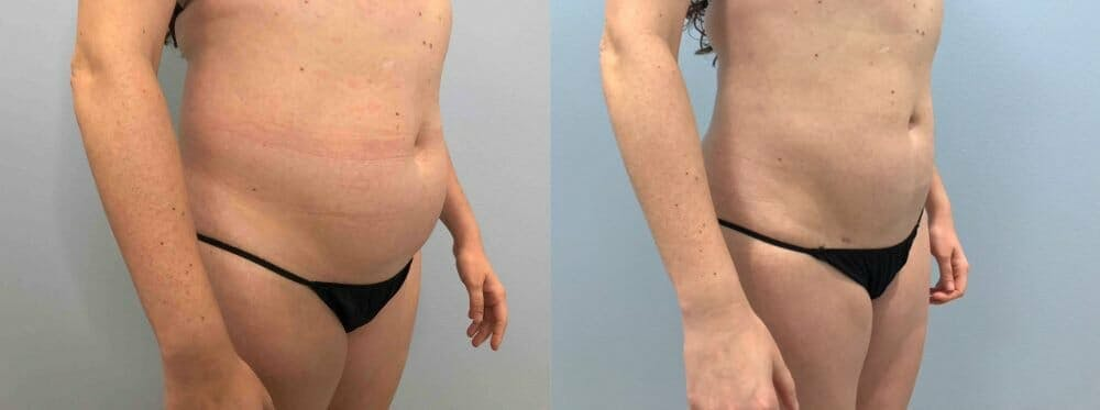 Liposuction Gallery - Patient 47253742 - Image 2