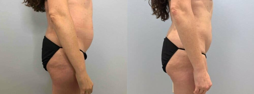 Liposuction Gallery - Patient 47253742 - Image 3