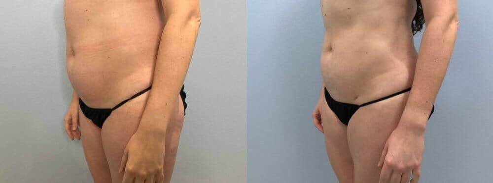 Liposuction Gallery - Patient 47253742 - Image 4
