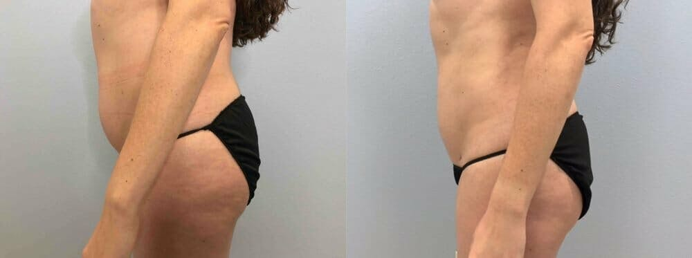 Liposuction Gallery - Patient 47253742 - Image 5