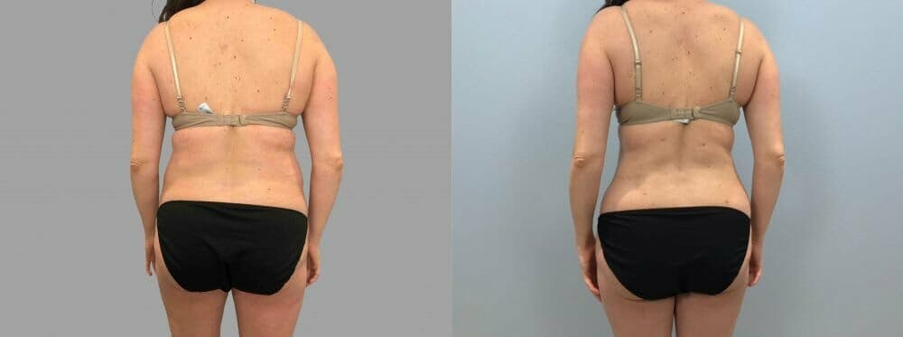Liposuction Gallery - Patient 47253742 - Image 6