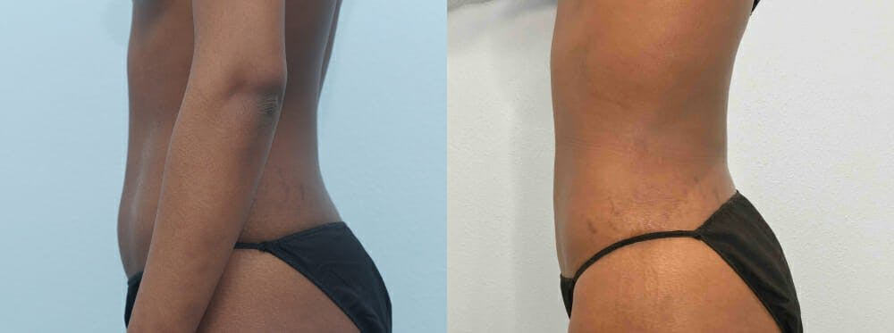 Liposuction Gallery - Patient 47253761 - Image 3
