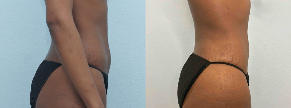 Liposuction Gallery - Patient 47253761 - Image 5