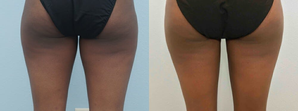 Liposuction Gallery - Patient 47253761 - Image 6