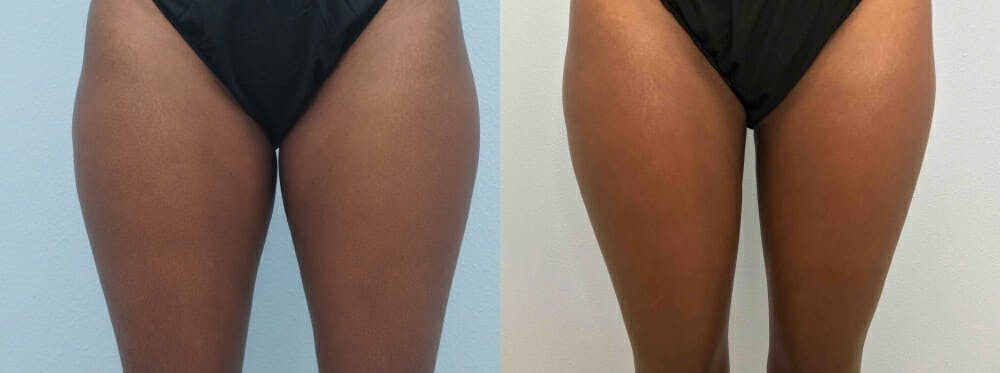 Liposuction Gallery - Patient 47253761 - Image 7