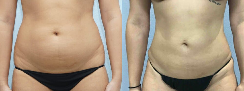 Liposuction Gallery - Patient 47253763 - Image 1